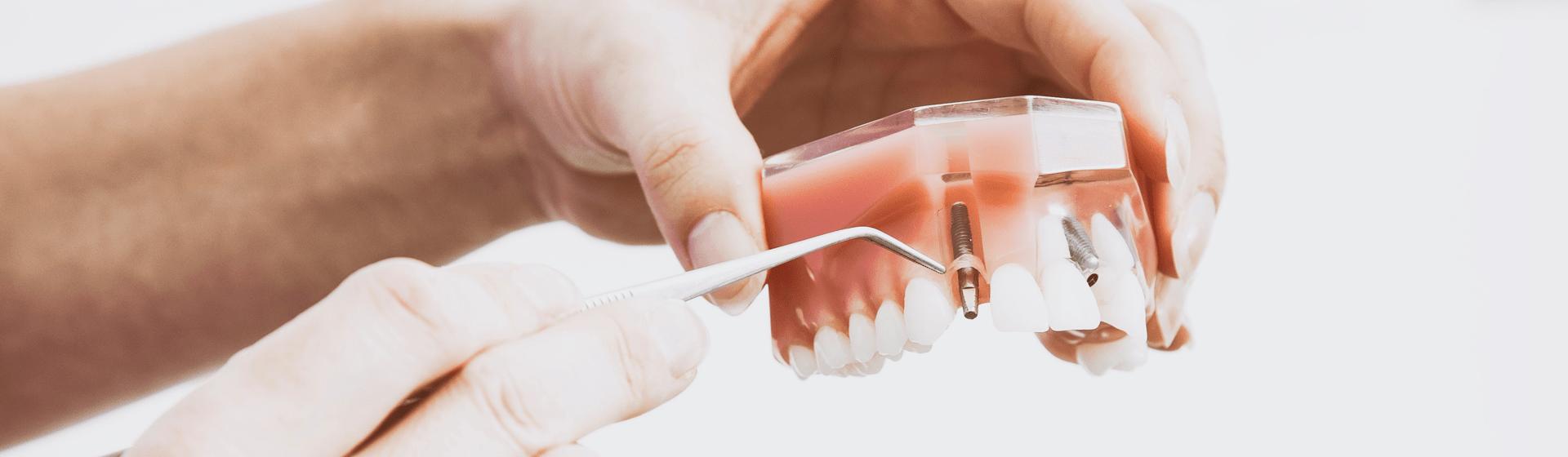 Behandlungsfehler durch Zahnarzt